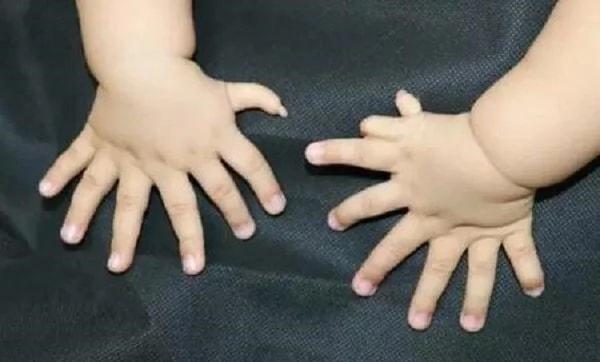 В «Поднебесной» родился младенец с31 пальцем наруках иногах