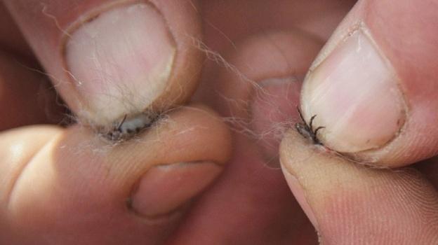Занеделю отукусов клещей пострадали 60 смолян
