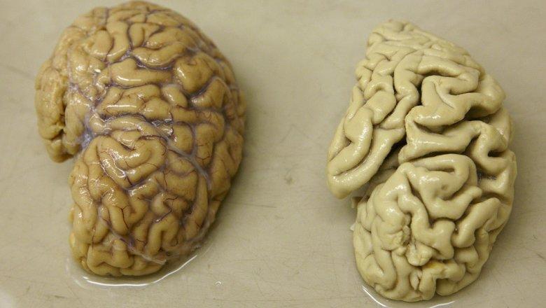 Жертвам деменции впервый раз частично вернули память— Ученые